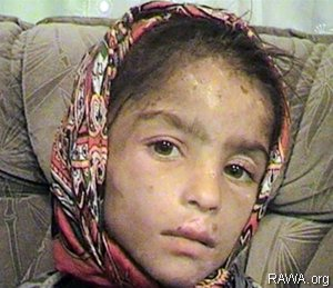 In 2004, five-year-old Samia's father raped a ten-year-old girl in northern Afghanistan. Samia was then handed over to the raped girl's family as compensation. The family kept Samia trapped in a cellar, where they would hit, brand and torture her for two years until neighbours reported them to the authorities. Photo and report: RAWA