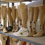 They make their own prostheses at the centre. That provides the disabled people with work. Photo: Jens Kjær Jensen, 2003