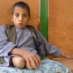 It will be difficult to get by in Afghanistan without legs. Photo: Jens Kjær Jensen, 2003